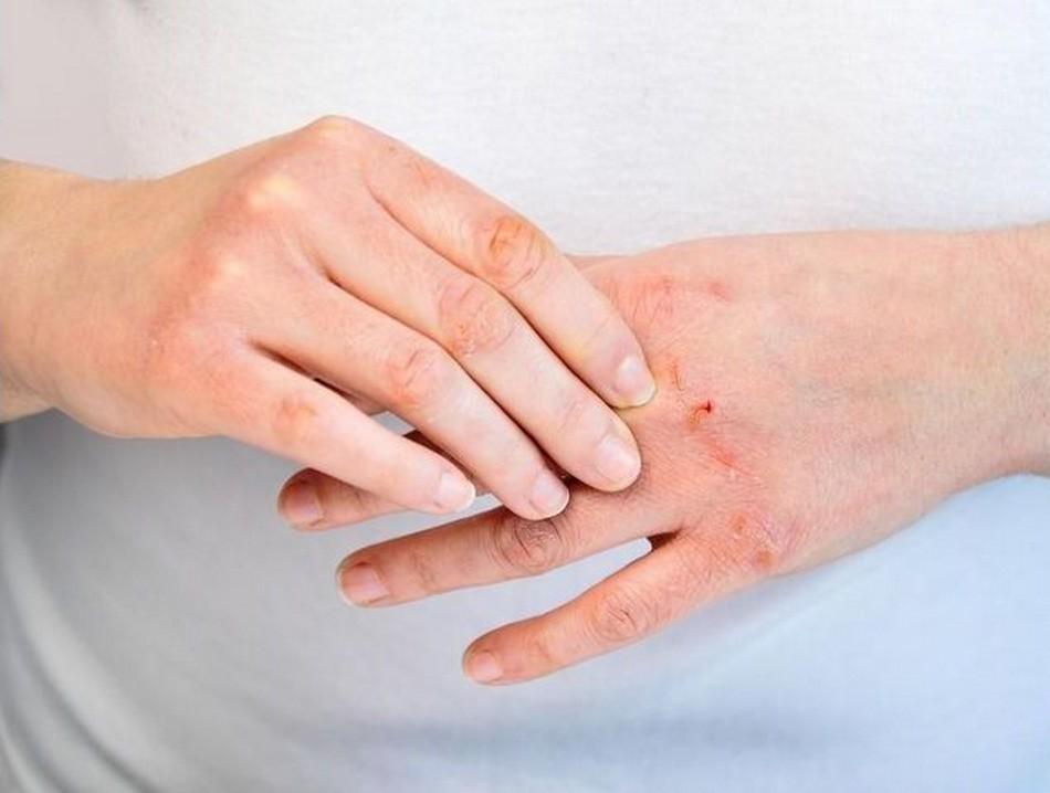 eczéma mains dermatite atopique