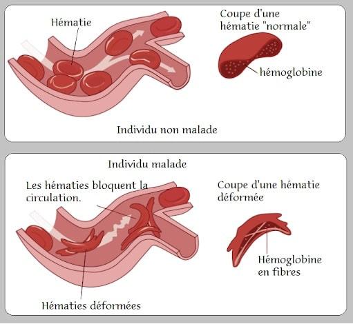 schema drepanocytose