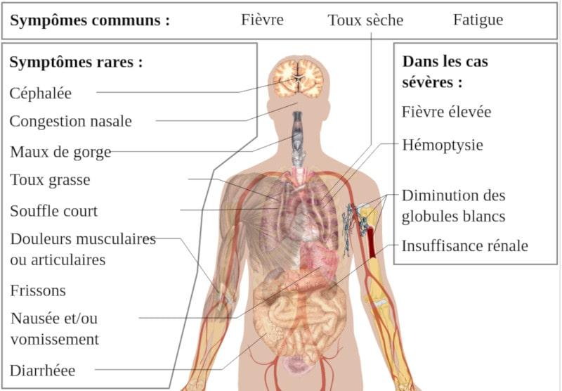 symptômes COVID-19