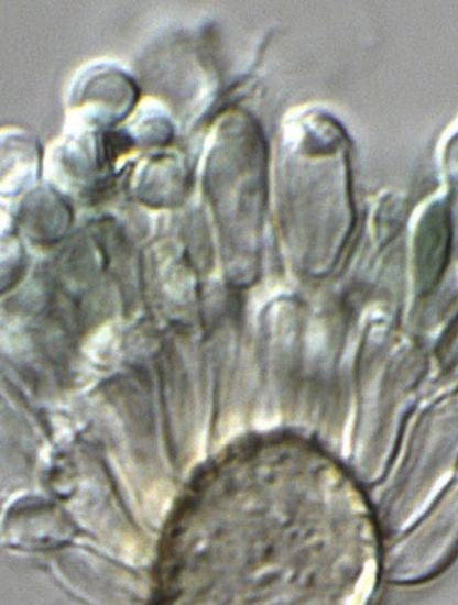 champignon hybride Aspergillus infections pulmonaires