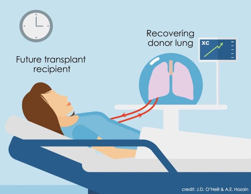 circulation croisée receveur greffe organe