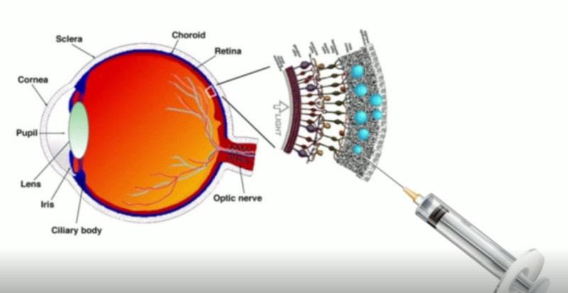 injection prothèse rétine liquide nanoparticules