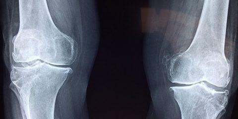 hydrogel remplacement cartilage genoux