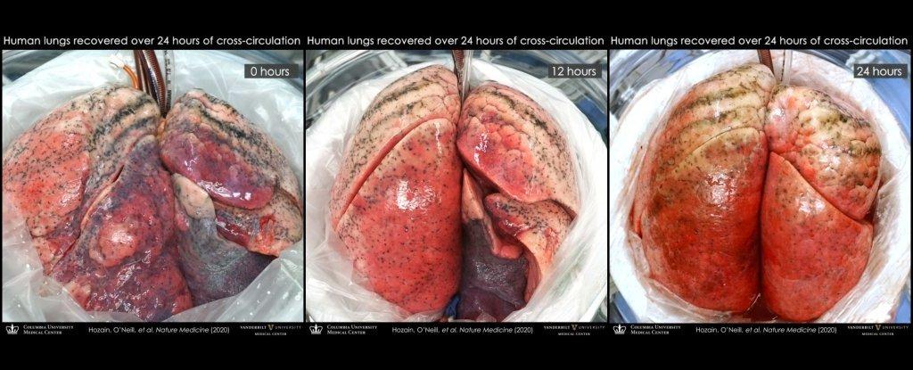 réparation poumons humains circulation croisée porc