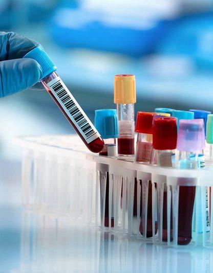test sanguin sang cancer maladie detection diagnostic precoce rapide