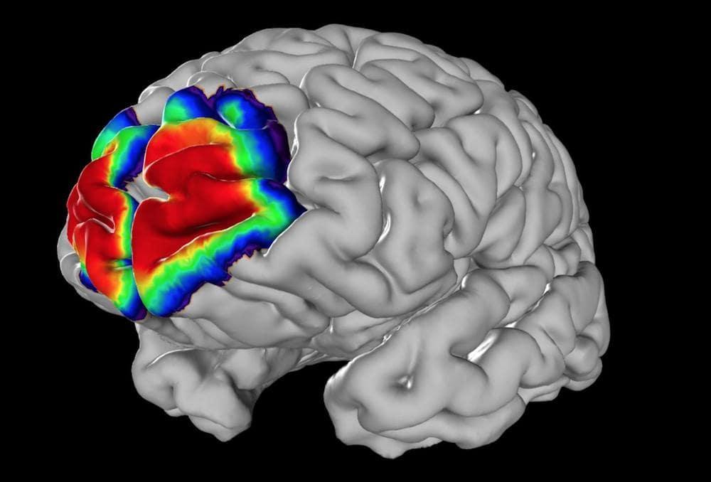 carte des probabilites cerveau