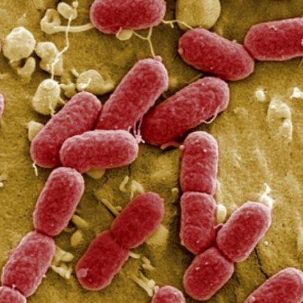 e coli bacterie