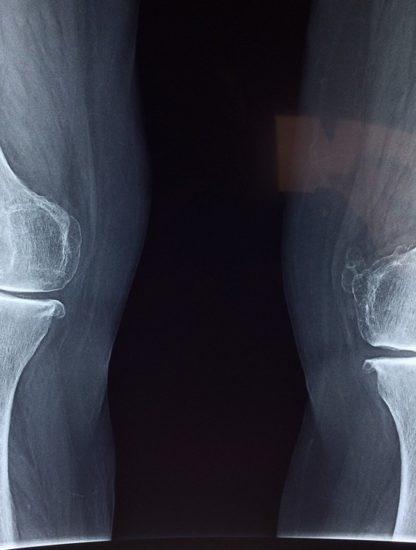 genou radio cartilage