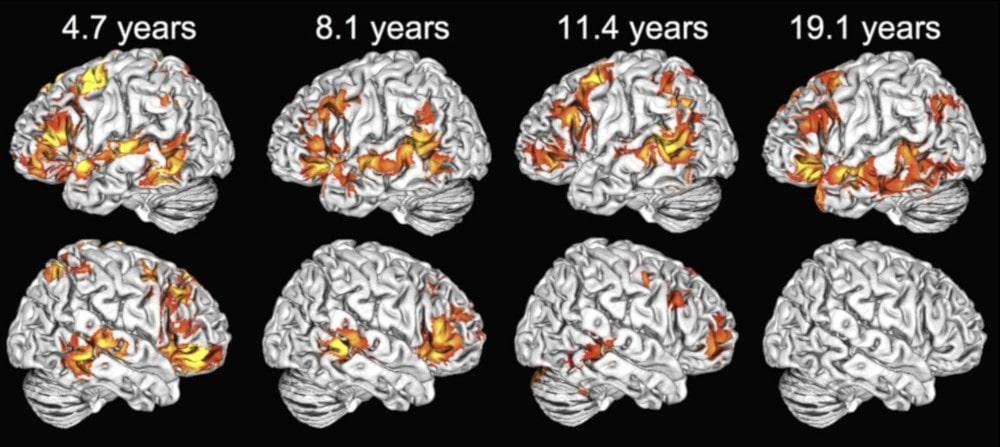 activation hémisphères cérébraux langage