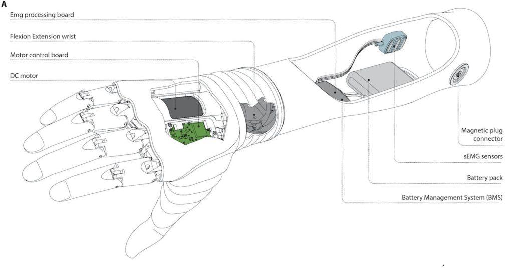 architecture prothese main robotique hannes schema