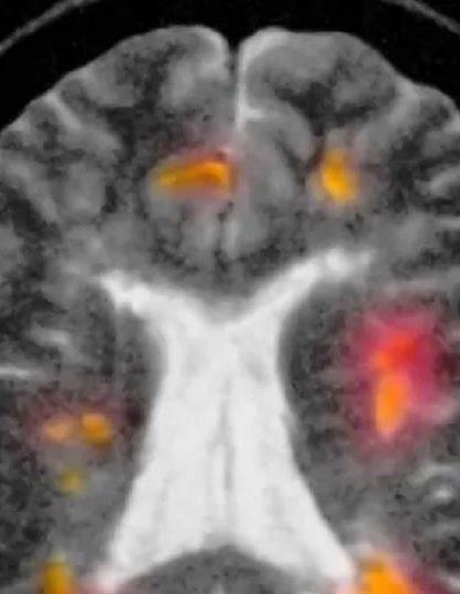 régénération myéline lutte contre sclérose plaques avance