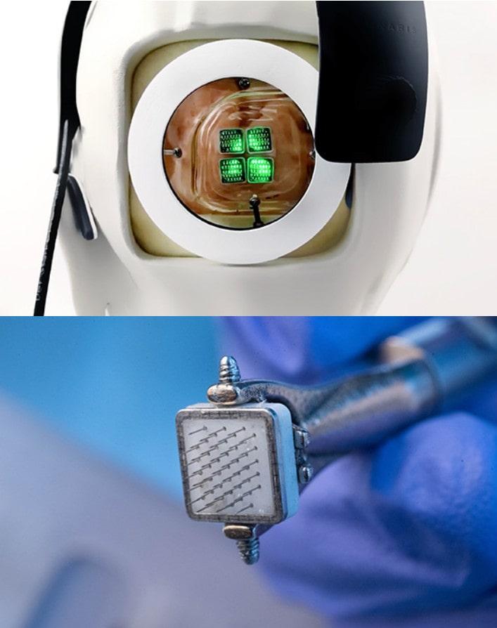 système vision bionique test homme
