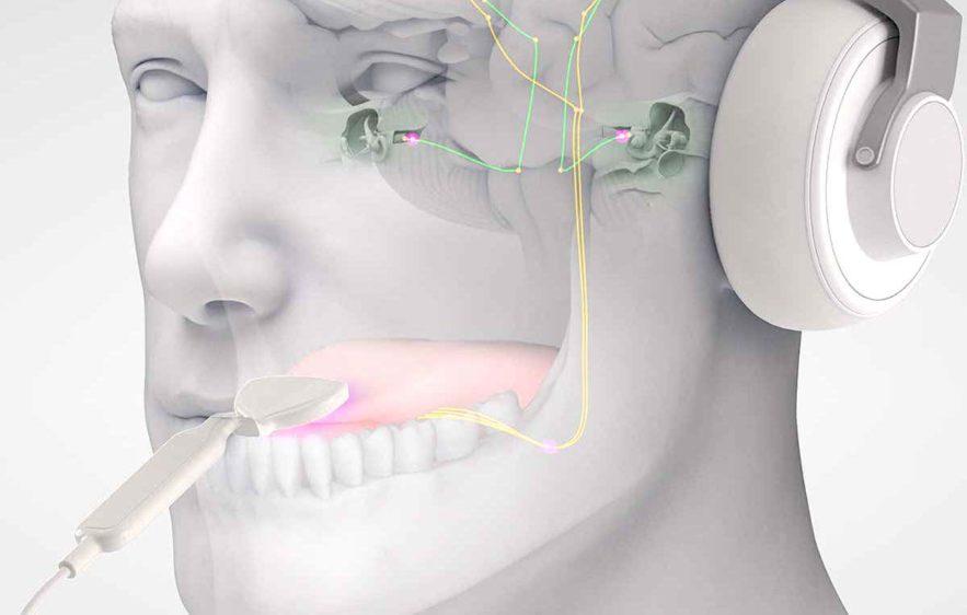 acouphenes traitement musique stimulations langue lenire