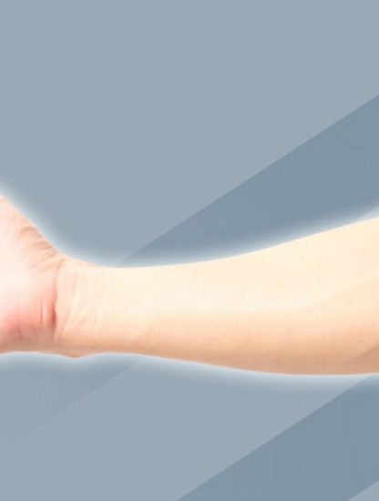artère médiane persistance adultes évolution couv
