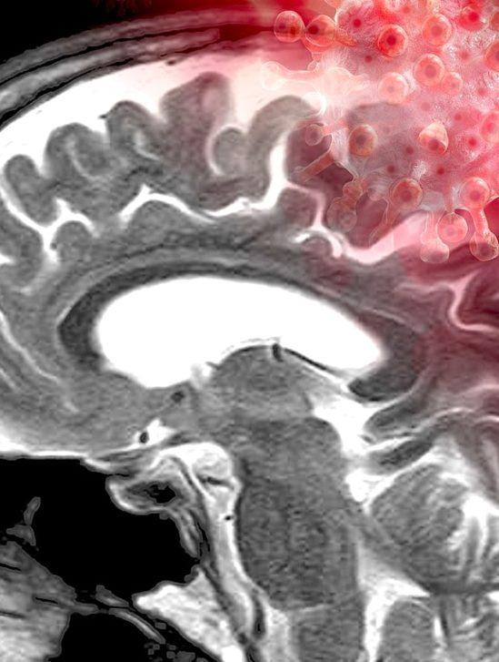 coronavirus cerveau detection anomalies post-covid