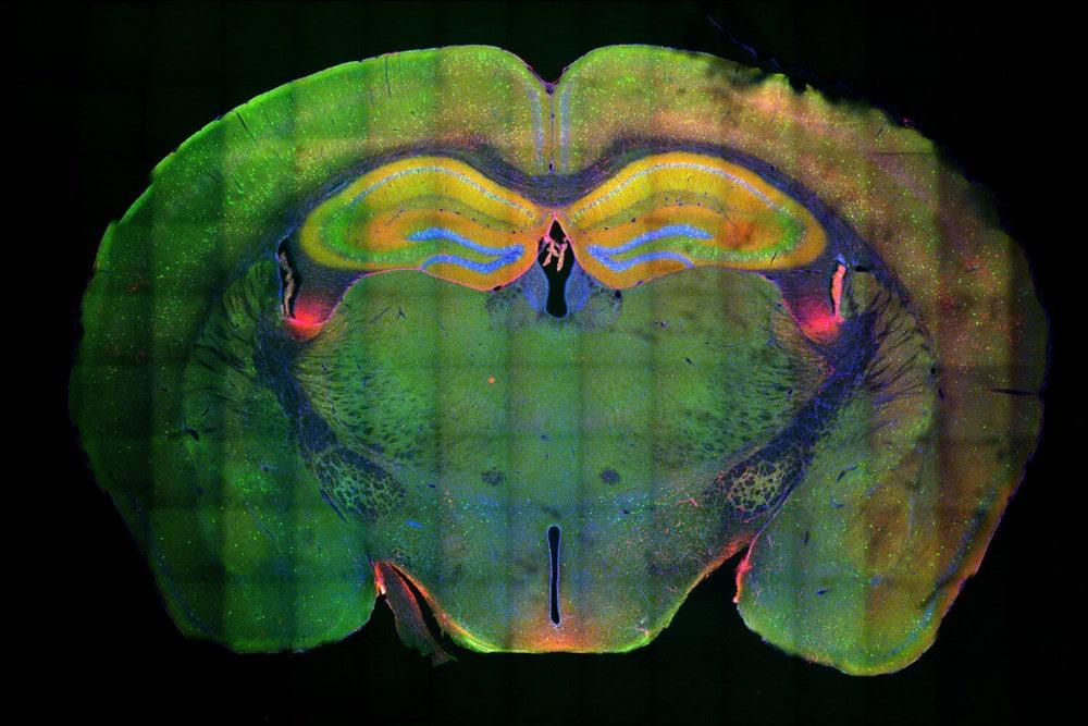 coupe cerveau neurones souvenirs