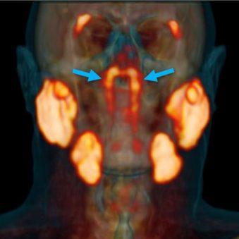 découverte glandes salivaires