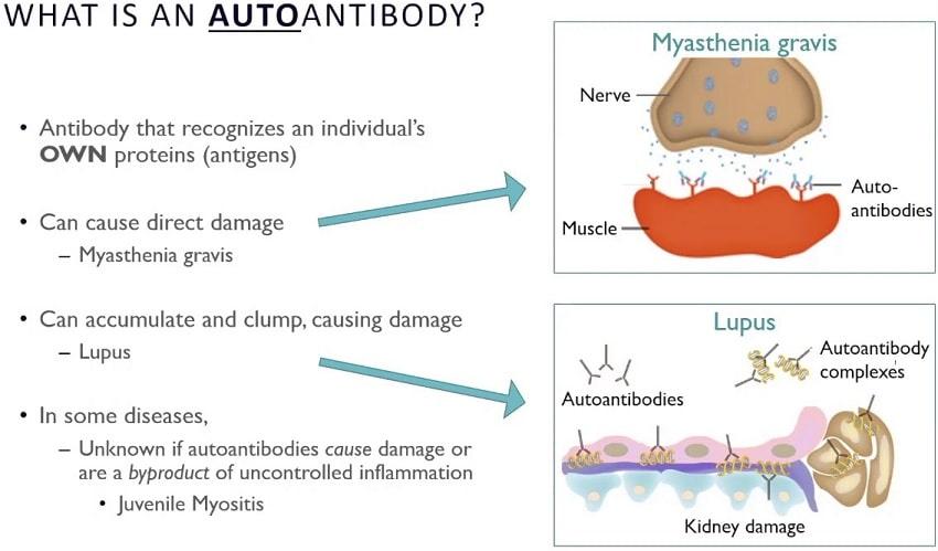 infographie explication auto-anticorps