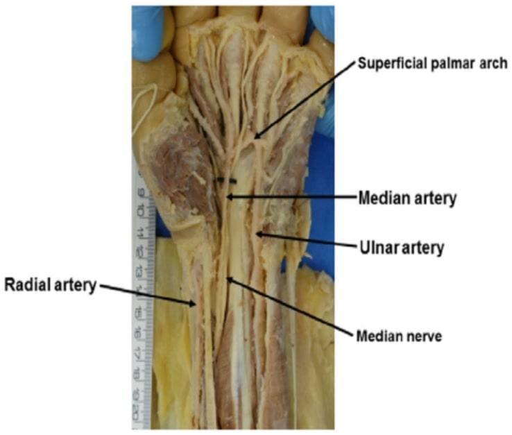 vue dissection anatomique avant-bras artère médiane