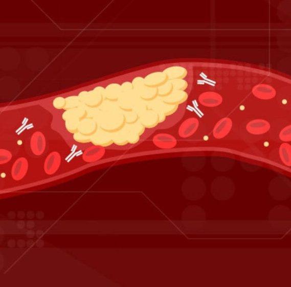 anticorps caillots sang coagulation covid-19