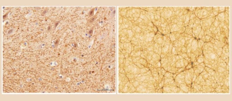 comparaison réseaux cerveau univers