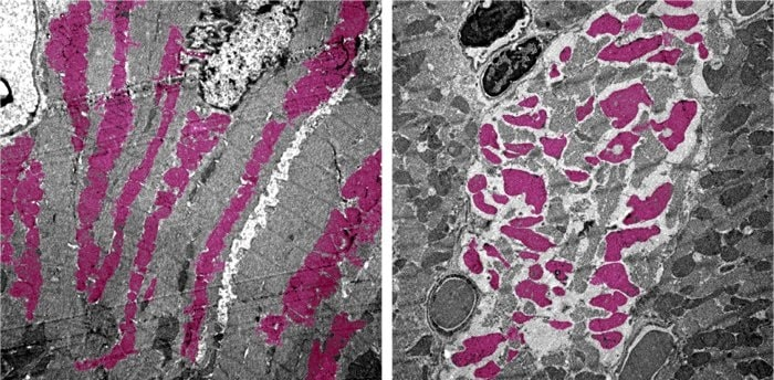 microscopie cellules musculaires cardiaques infection