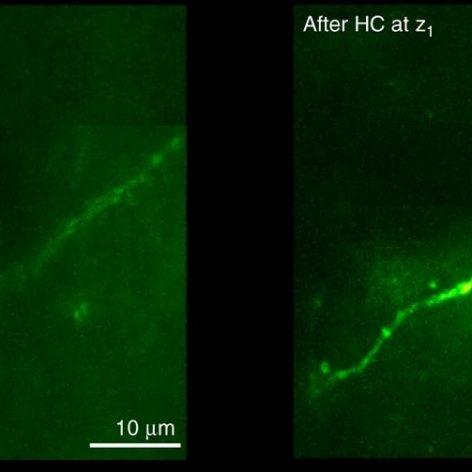 nouvelle technique imagerie permet voir travers os