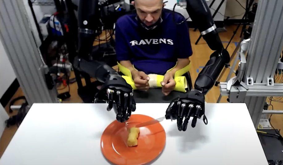 patient quadriplegique se nourrit avec bras prothetiques connectes cerveau