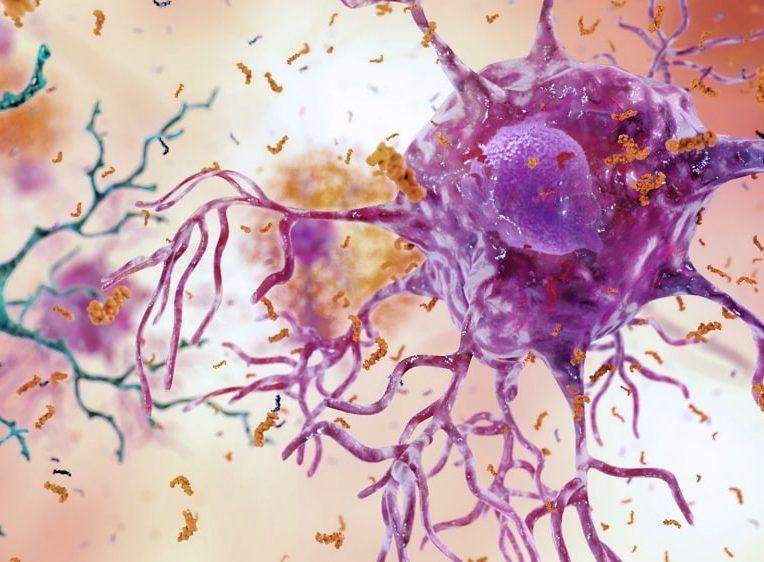 chercheurs identifient neurones vulnerables maladie alzheimer