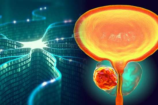 diagnostiquer cancer precision test urine intelligence artificielle