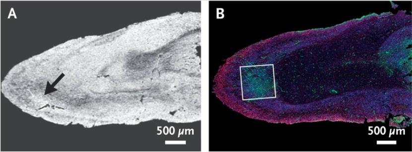image signal hyperintense bulbe olfactif