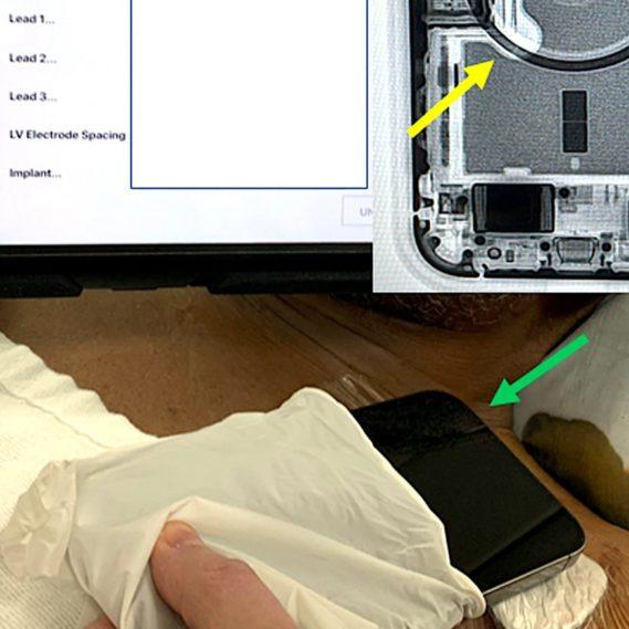 interruption fonctionnement pacemaker iphone 12