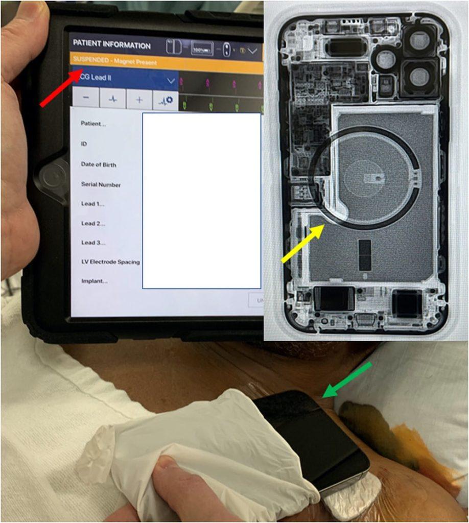 interruption fonctionnement pacemaker iphone 12 detail