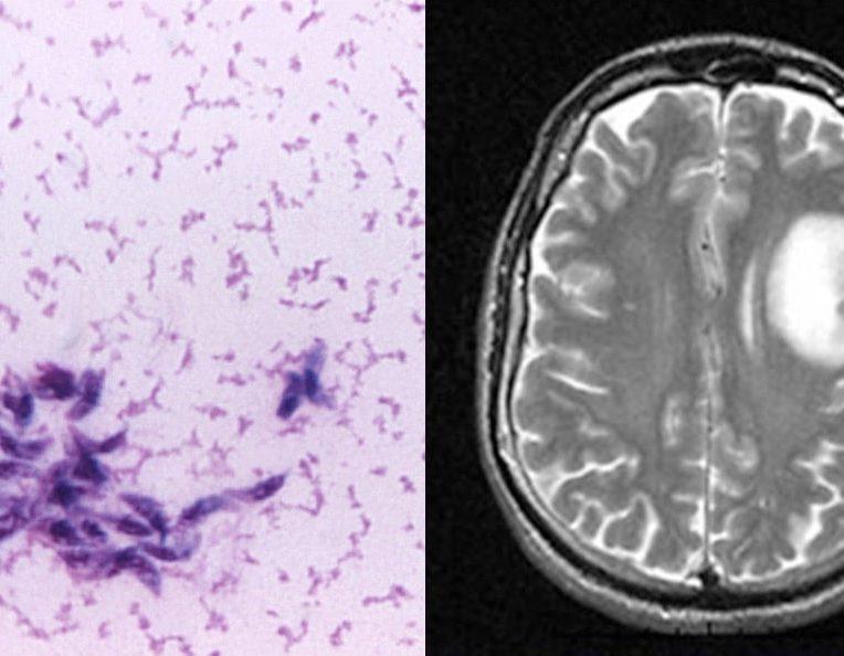 mise evidence lien parasite rapandu cancer cerabral humain