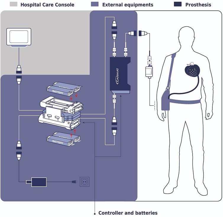 schema composantes coeur artificiel