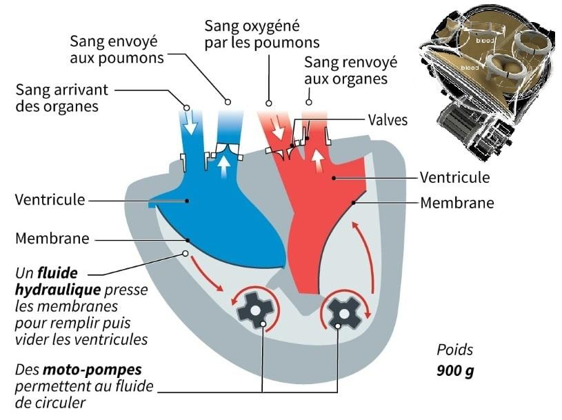 structure fonctionnement coeur artificiel