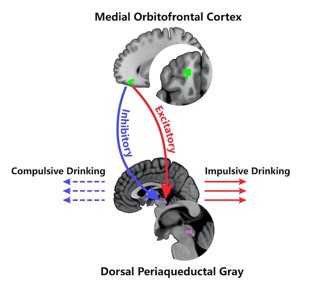 cortex orbitofrontal consommation abusive alcool