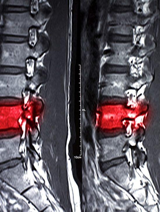 reparer moelle epiniere blessee avec cellules souches-patients