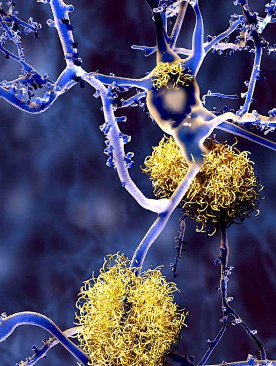 cbd reduirait plaques-beta amyloides ameliorerait cognition alzheimer