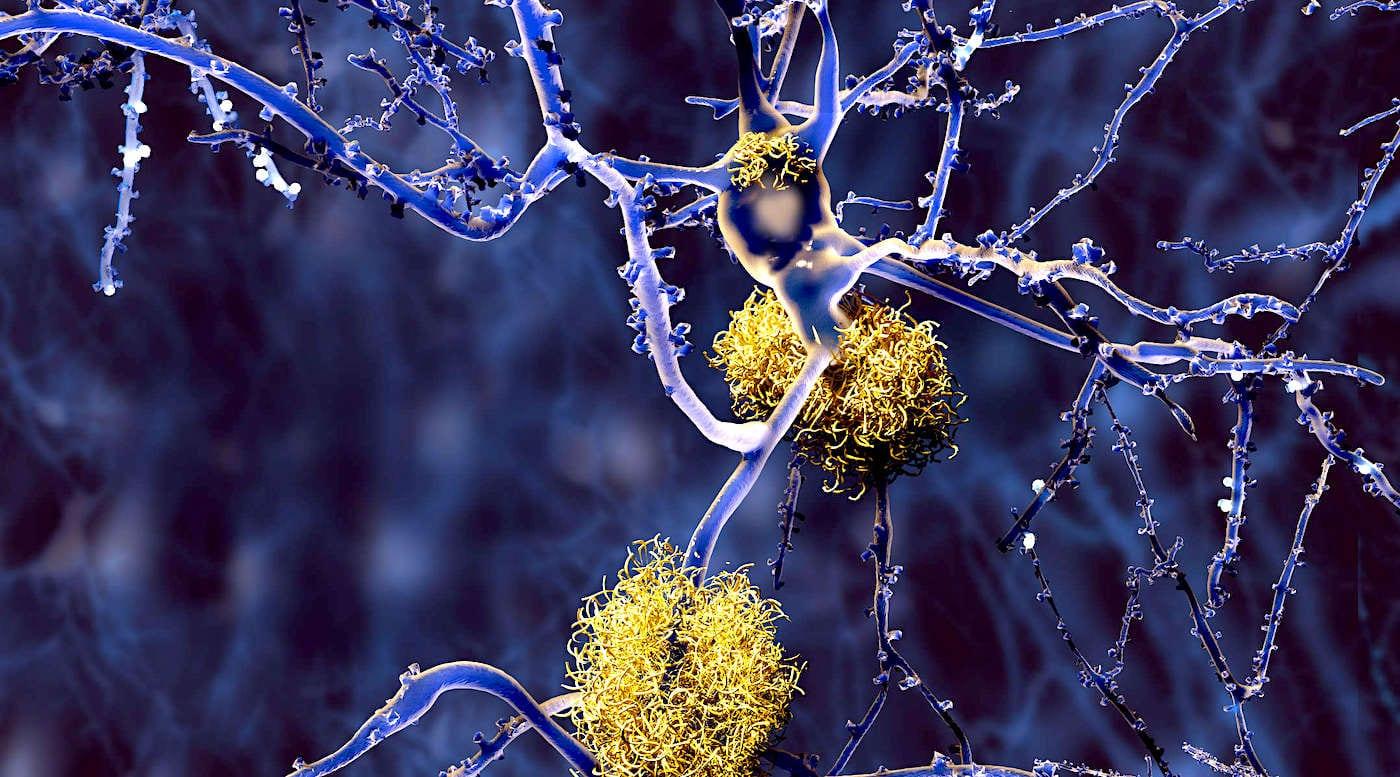 Le CBD réduirait les plaques amyloïdes et améliorerait la cognition chez les personnes atteintes d'Alzheimer - Trust My Science