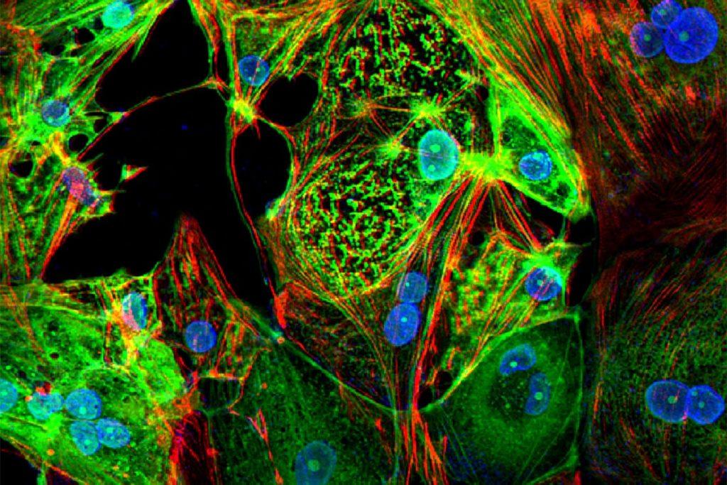 cellules cardiques infectees sars-cov-2