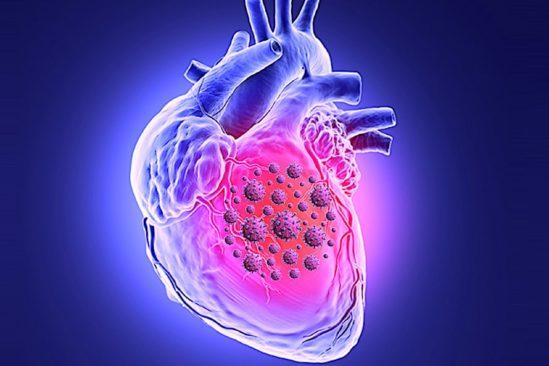 sars-cov-2 peut tuer cellules muscle cardiaque interferer avec contraction