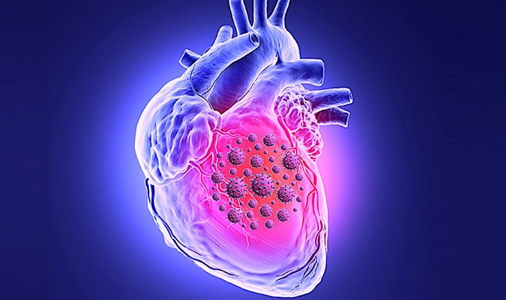 À LIRE AUSSI : COVID : en tuant les cellules du muscle cardiaque, le coronavirus perturbe la contraction - Trust My Science