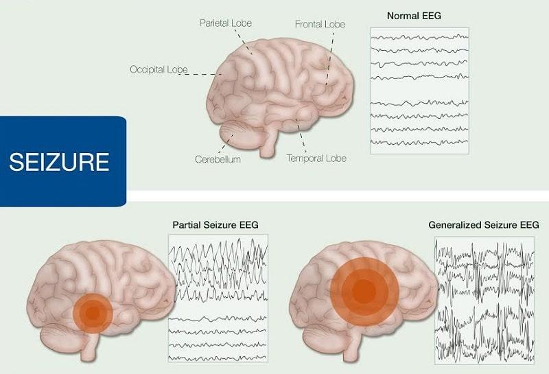 crise epileptique activite cerebrale