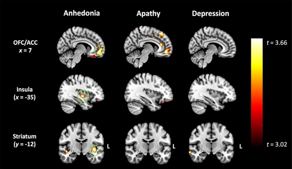 dégénérescence anhédonie apathie dépression
