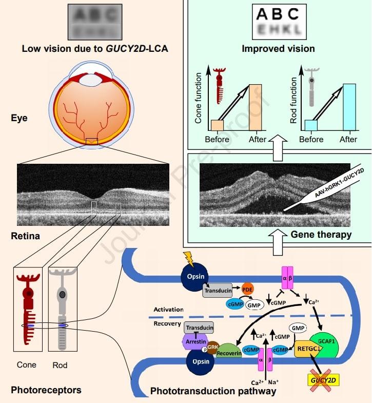 infographie resultats therapie genique vision