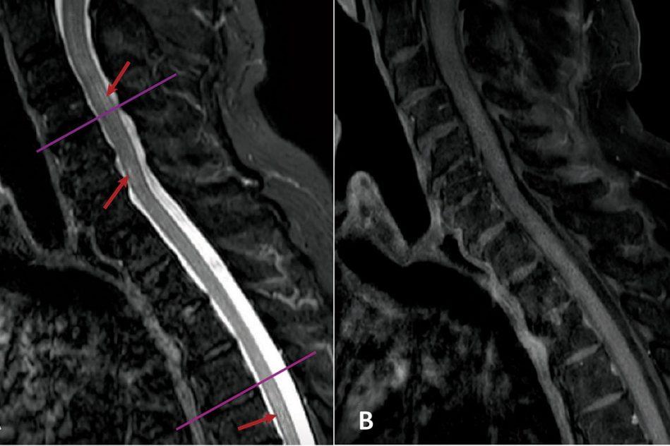 mise evidence lien covid pathologie neurologique rare
