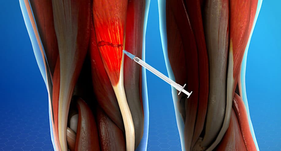 nouvel hydrogel reduit moitie temps recuperation blessures musculaires
