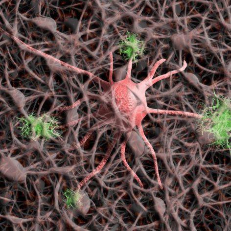sous-types maladie Alzheimer