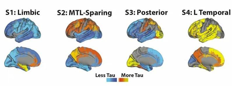Alzheimer 4 sous-types